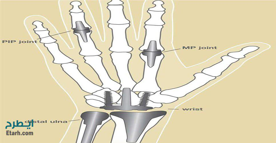 طرح تولید پیچ و مهره های داخل استخوان مفصل های مصنوعی